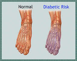 Foot Complication